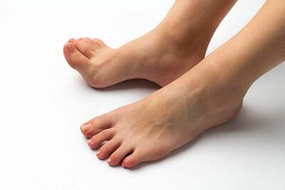 足底筋膜炎の原因と治療法