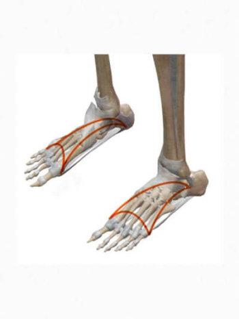 足裏の痛みとアーチ