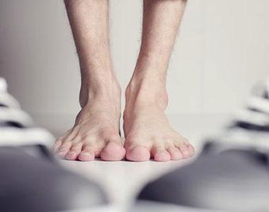 足底筋膜炎で鳥取からご来院の松田さんのケース