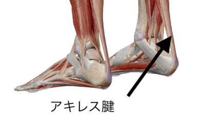 足底筋膜炎の原因 アキレス腱